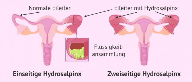 Imagen: Hydrosalpinx kann in einem oder beiden Eileitern auftauchen