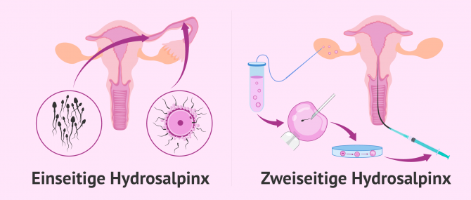 Imagen: Schwangerschaft mit Hydrosalpinx