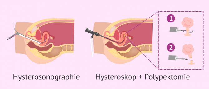 Imagen: Hysterosonographie und Hysteroskop Polypen