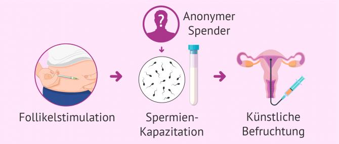 Imagen: IUI mit Samenspende für alleinstehende Wunschmütter