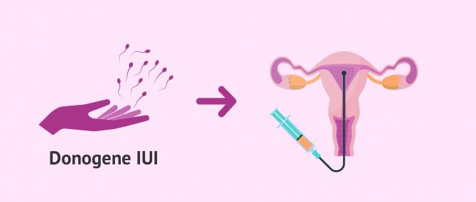 Imagen: Künstliche Befruchtung mit Spendersamen