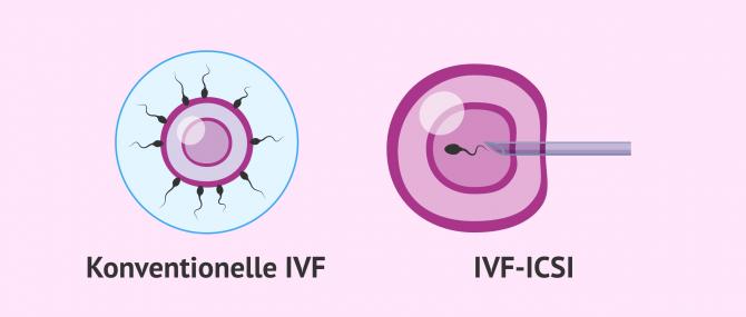 Imagen: IVF konventionell, ICSI-IVF