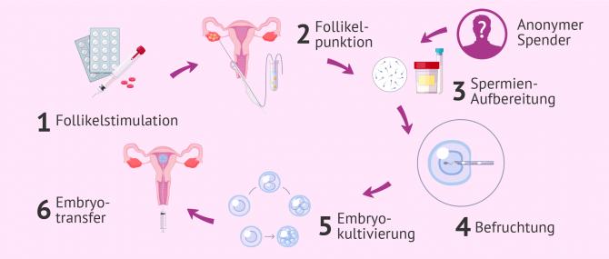 künstliche befruchtung single deutschland