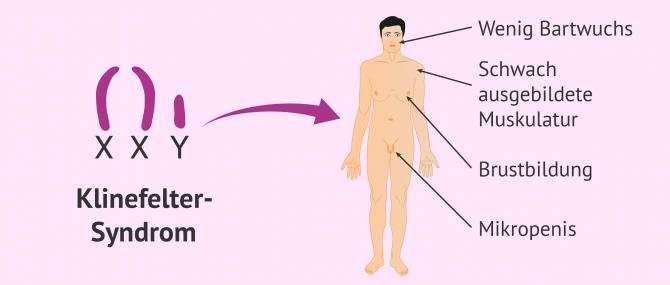 Imagen: Klinefelter-Syndrom