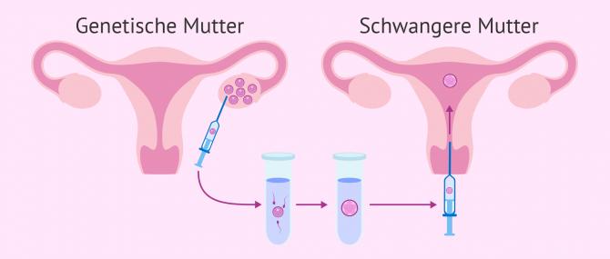 Imagen: Ablauf der ROPA-Methode (Eizellenentnahme der Partnerin)