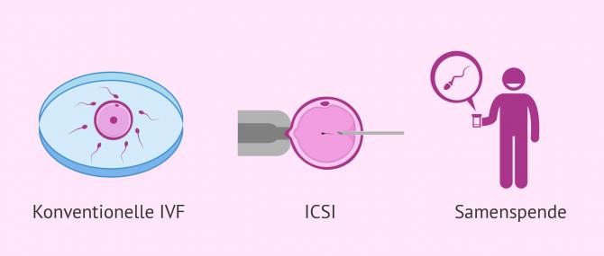 Imagen: Lösungen bei Astenozoospermie um schwanger zu werden