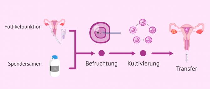 Imagen: Transfer IVF mit Spendersamen