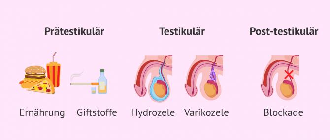 Imagen: Ursachen die  bei Männern Oligospermie verursachen