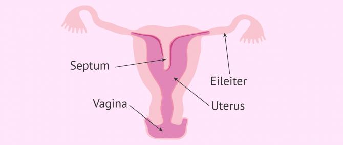 Imagen: Uterus Septus