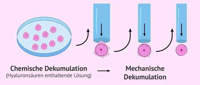 Imagen: Dekumulation Verlauf