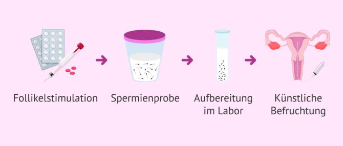 Imagen: Spermien des Partners für künstliche Befruchtung verwenden