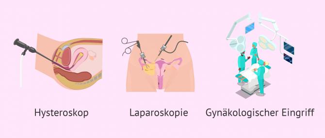 Imagen: Operative Eingriffe in der Gebärmutter