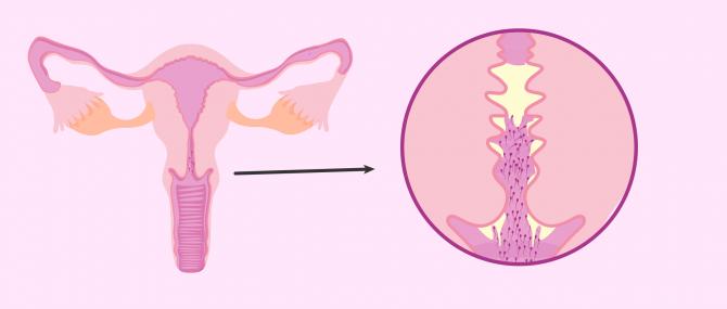 Imagen: Immunlogische Sterilität durch Sperma-Antikörper