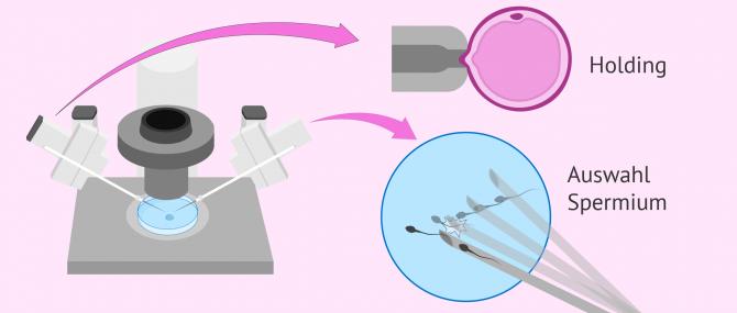 Imagen: Prozess ICSI Holding Auswahl Spermien