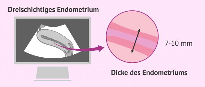 Imagen: Ultraschall zur Untersuchung des Endometriums