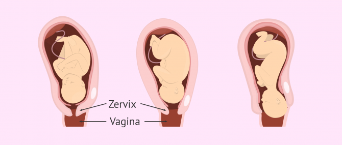 Imagen: Vaginalgeburt