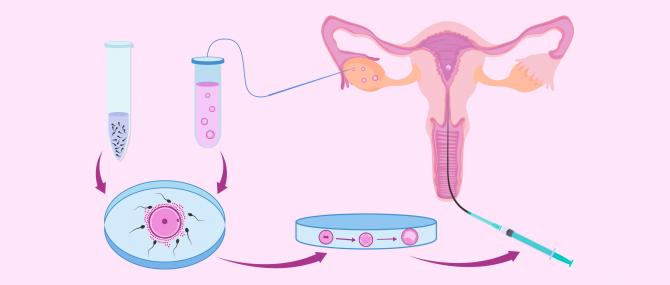 Imagen: Verlauf einer IVF