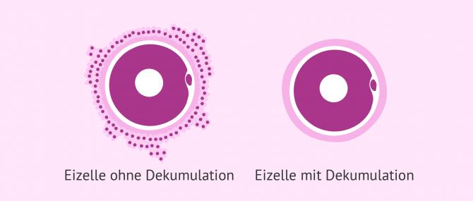 Imagen: Dekumulation der Eizellen