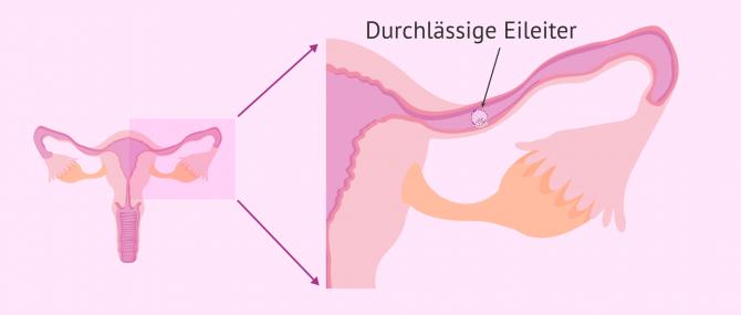 Imagen: Eizelle wird in der Eileiter befruchtet