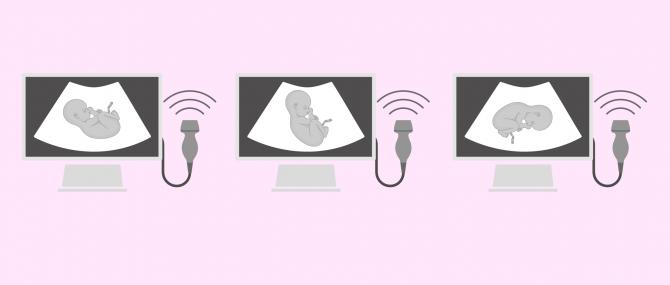 Imagen: Fötusstellungen, bei denen ein Kaiserschnitt notwendig ist
