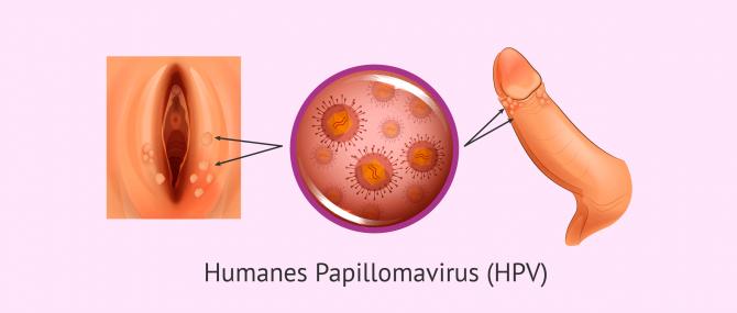 Imagen: Genitalwarzen durch HPV