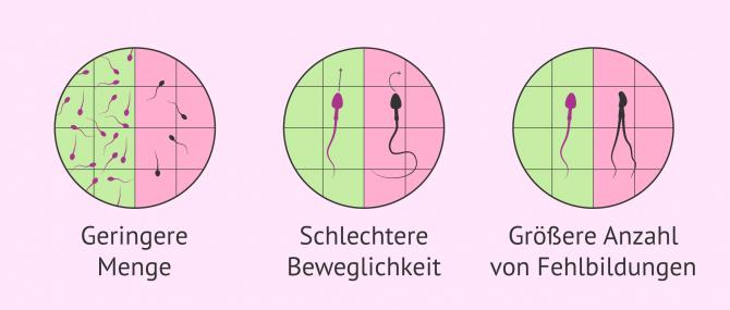 Imagen: schlechte Spermienqualität durch Übergewicht