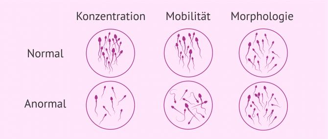 Imagen: Spermiogramm Ergebnisse
