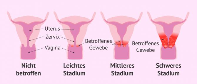 Imagen: Die verschiedenen Stadien des Zervixkarzinoms
