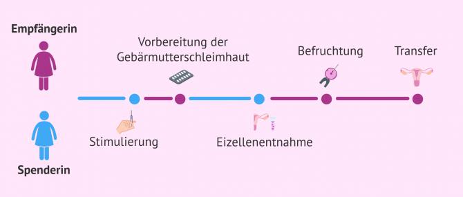 Imagen: Synchronisierung der Spenderin und Empfängerin bei frischer Eizellenspende