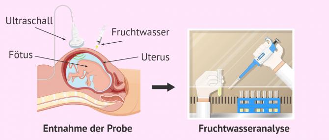 Imagen: Fruchtwasserentnahme- und analyse