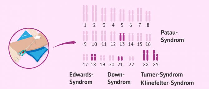 Imagen: Nicht-invasive Pränataldiagnostik im Blut der Mutter