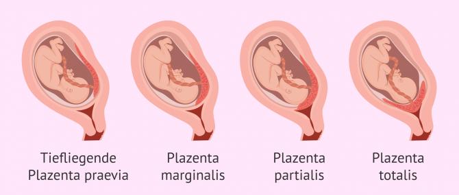 Imagen: Einteilung bei Placenta praevia