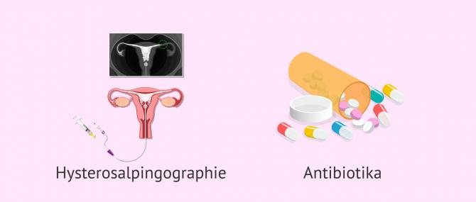 Imagen: Diagnose und Behandlung bei Salpingitis