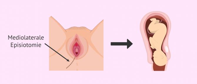 Imagen: Dammschnitt um die Geburt zu erleichtern