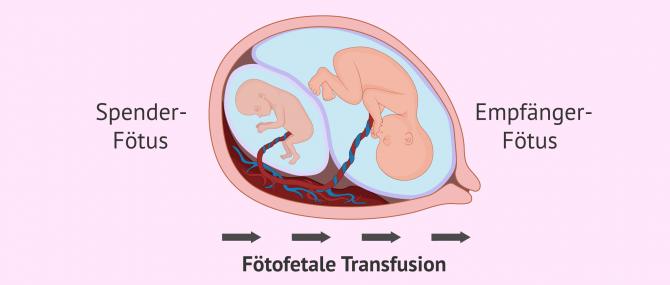 Imagen: Fötofetals Transfusionssyndrom