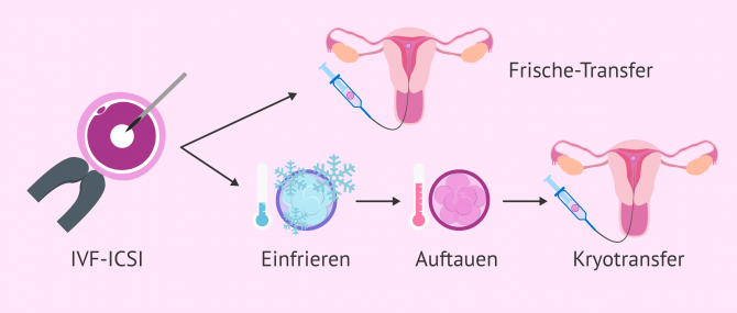 Imagen: Frischetransfer vs. Kryotransfer