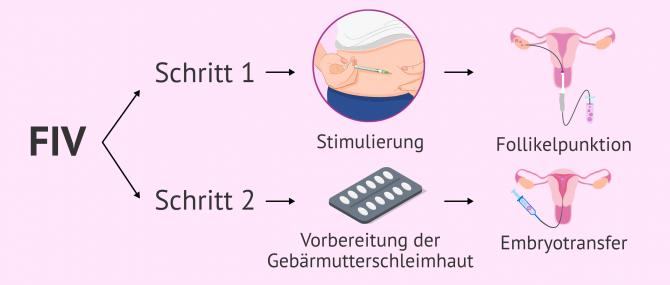 Imagen: IVF Schritt für Schritt