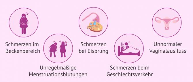Imagen: Symptome bei Salpingitis