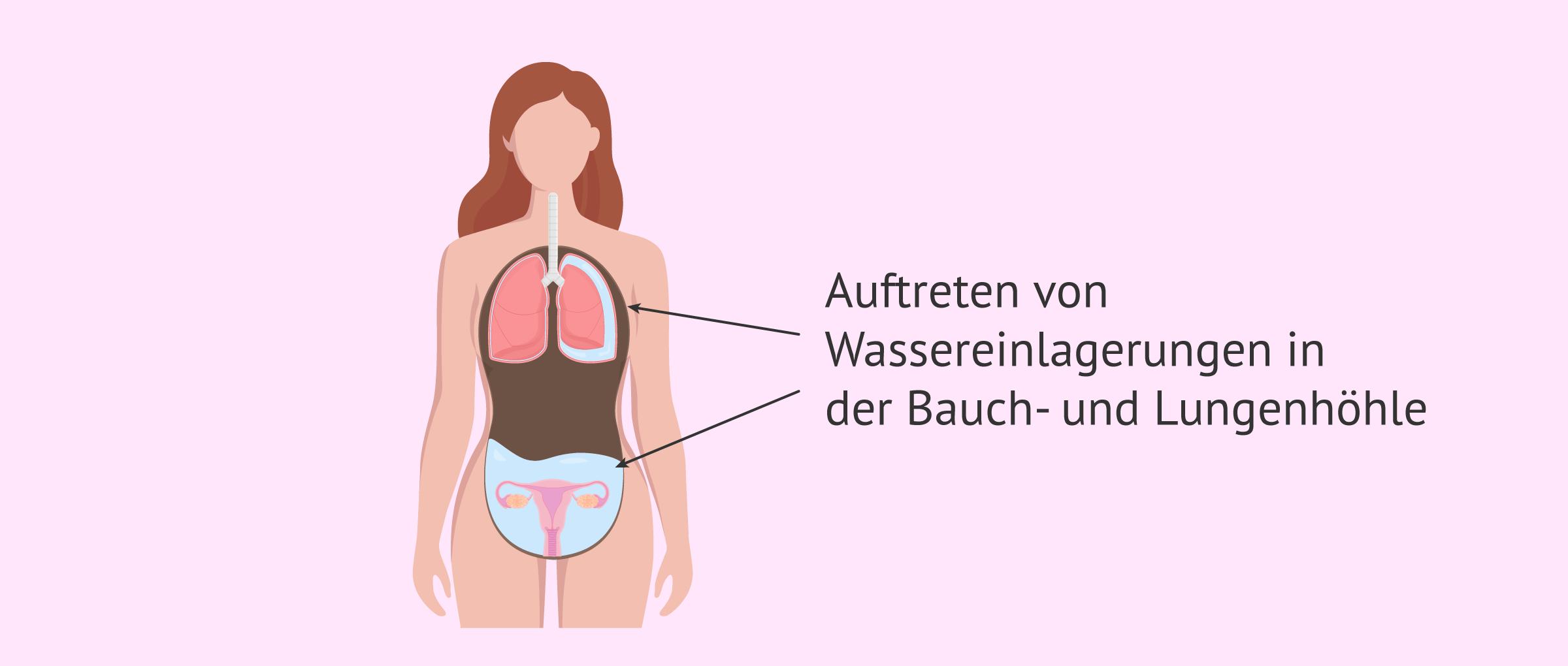 Wassereinlagerungen in der Bauchhöhle durch OHSS