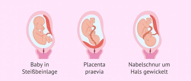 Imagen: Komplikationen im Fötus die einen Kaiserschnitt erfordern