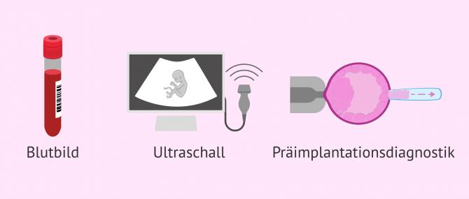 Imagen: Blutbild Ultraschall PID