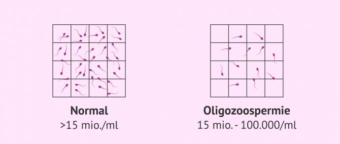 Imagen: Normale Probe und Probe mit Oligozoospermie
