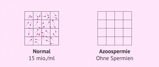 Imagen: Normale Spermaprobe und Samenprobe mit Azoospermie