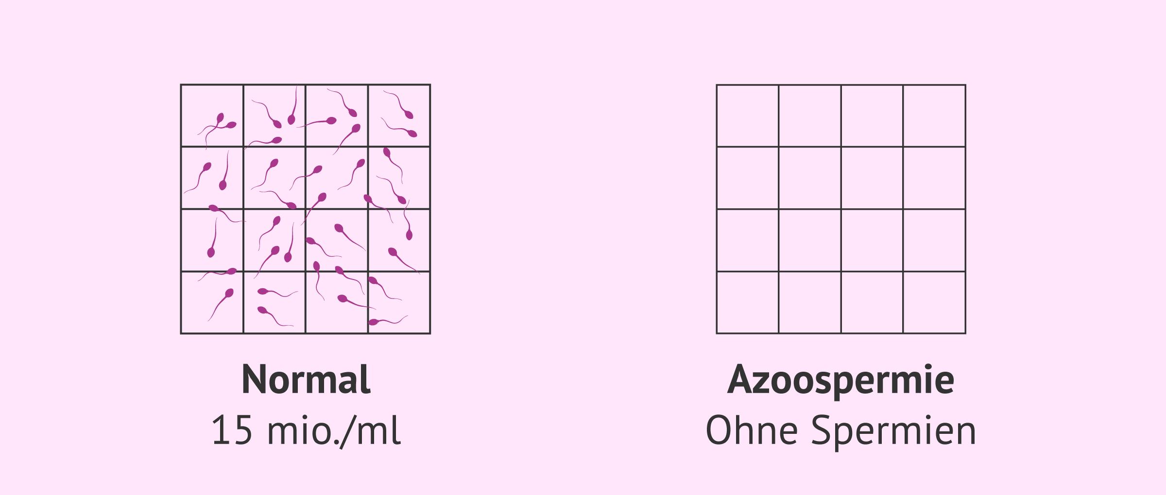 Normale Spermaprobe und Samenprobe mit Azoospermie