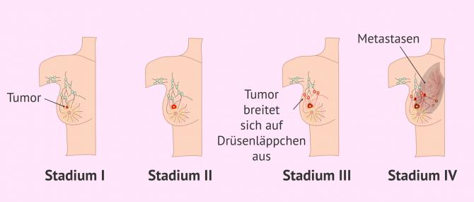 Imagen: Brustkrebsstadien