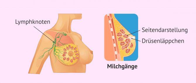 Imagen: Wo Brustkrebs auftreten kann
