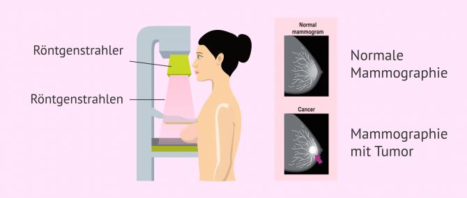 Imagen: Mammographie-Screening