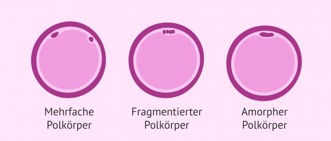 Imagen: Stadium der Eizellreserve analysieren