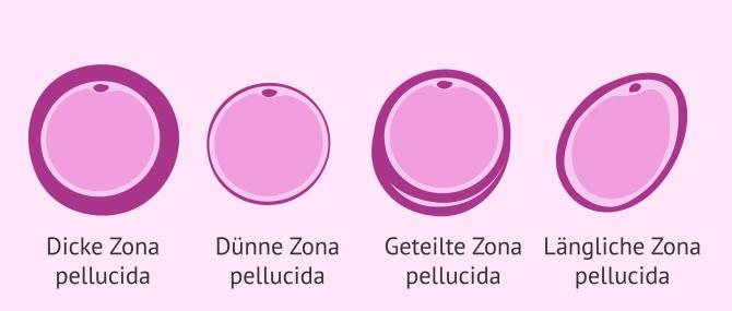 Imagen: Störungen in der Zona pellucida der Eizelle
