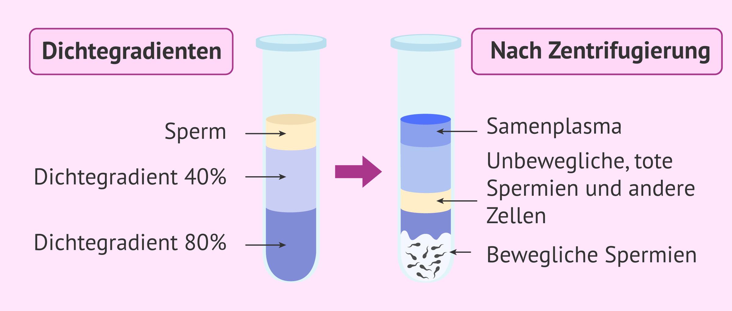Spermienaufbereitung nach Dichtegradienten
